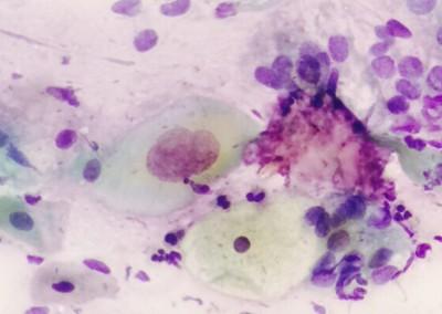 patologia-nefropatologia-guadalajara-5