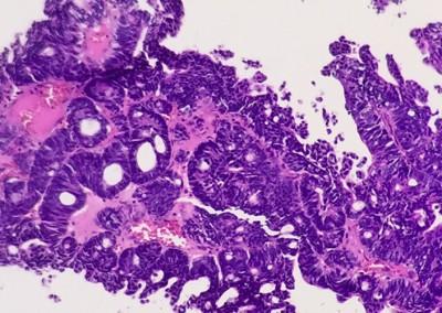 patologia-nefropatologia-guadalajara-6