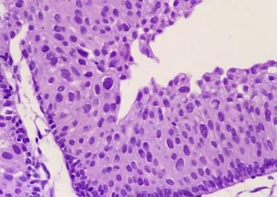 patologia-nefropatologia-guadalajara-8